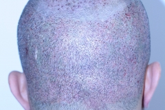 Patient b-4200 grafts-after 2 days