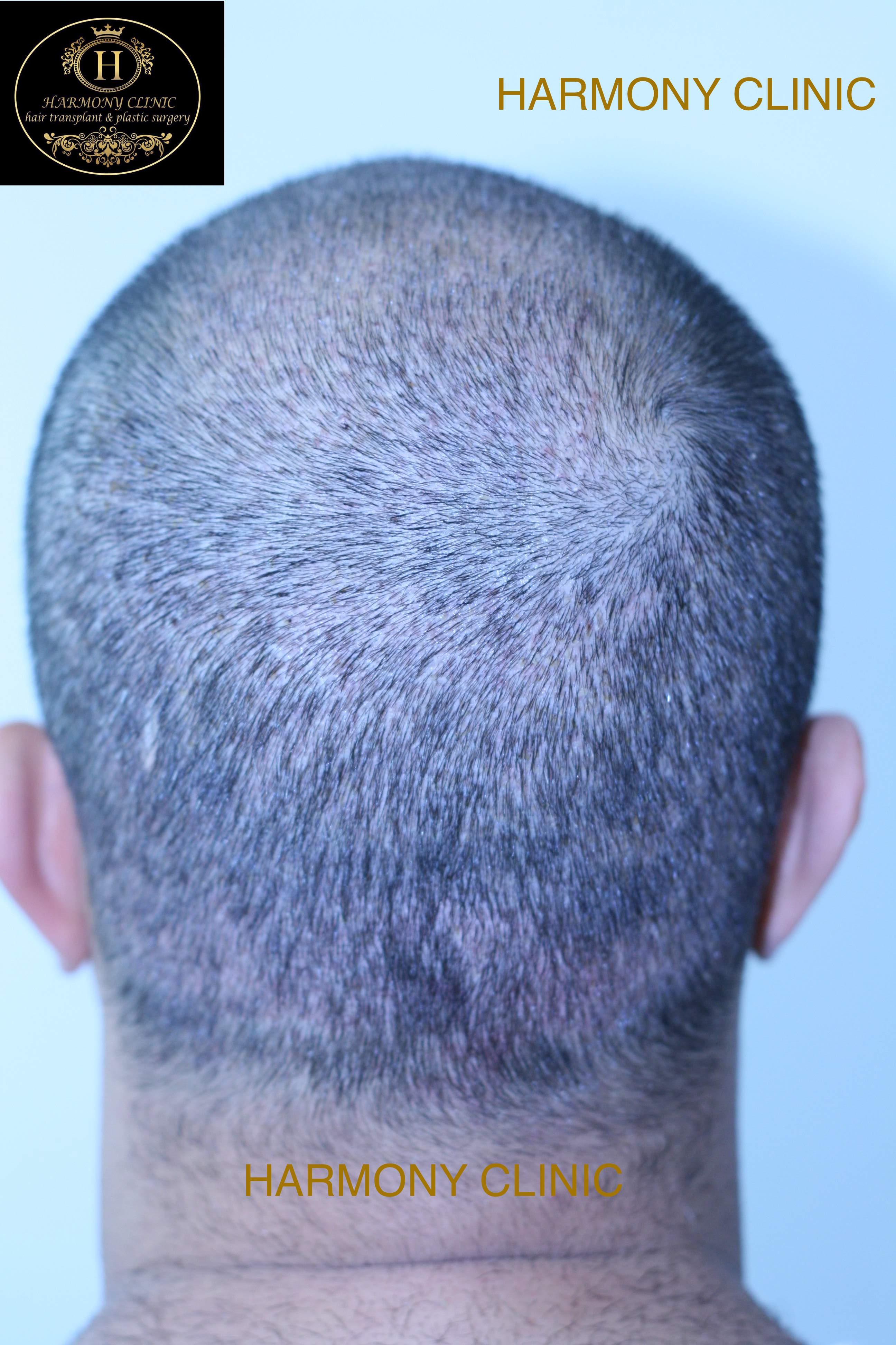 Patient b-4200 grafts-after 9 days(1)