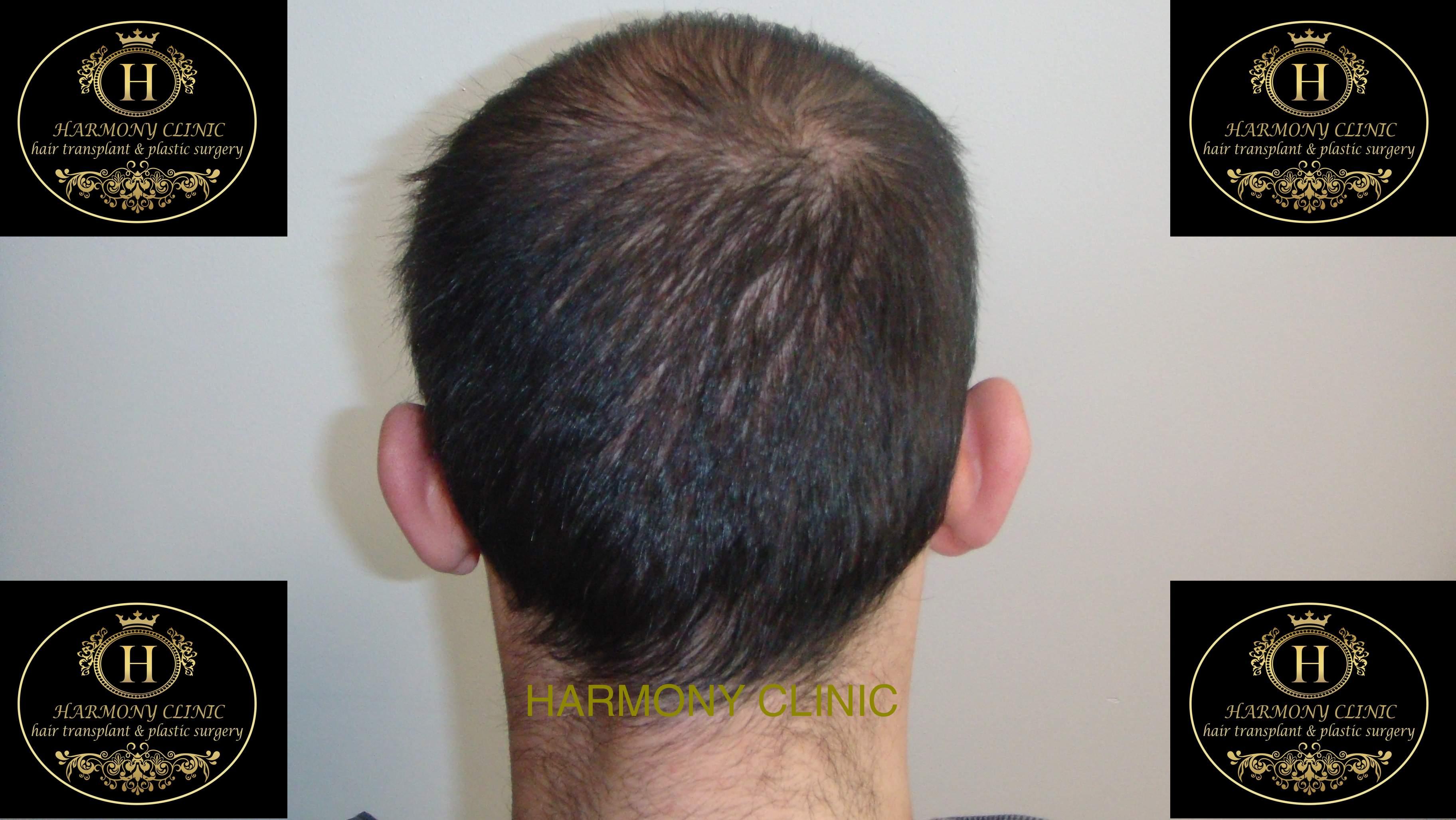 Patiente e-3500 grafts-after 3 months